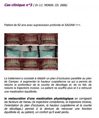 ASSOCIATION FRANCAISE PEDRO PLANAS - cas cliniques - RNO partie 1